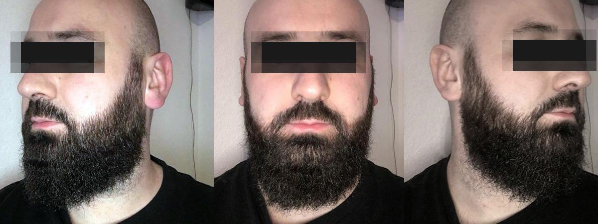 Coloration barbe APRES