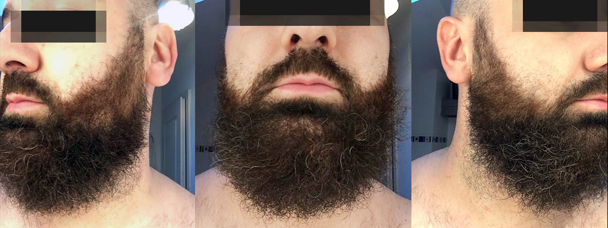 Coloration barbe AVANT